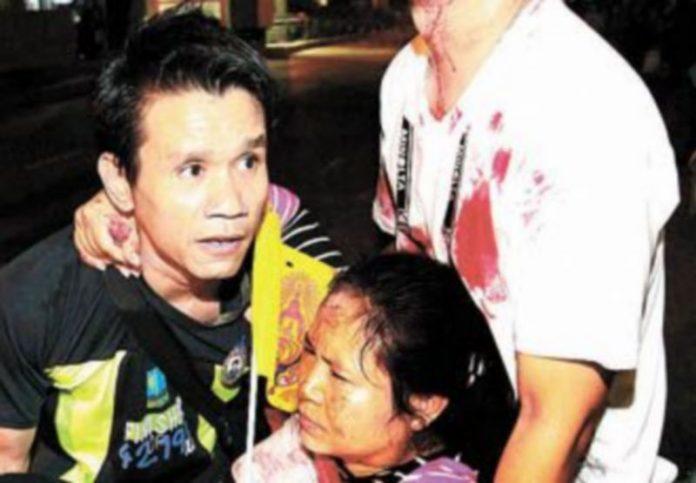Una de las personas heridas en los ataques con granadas. / S. Sukplang (Reuters)